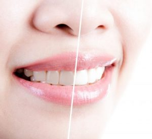 Huntington Station teeth whitening