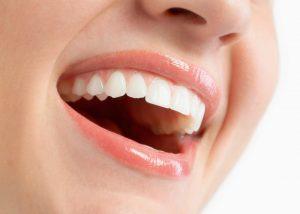Dental Implants in Wyandanch